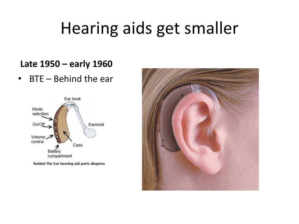 Ear Hook Bte Earmold Hearing Aids Diagram Schematic Diagrams Circuit Wiring Ppt Download