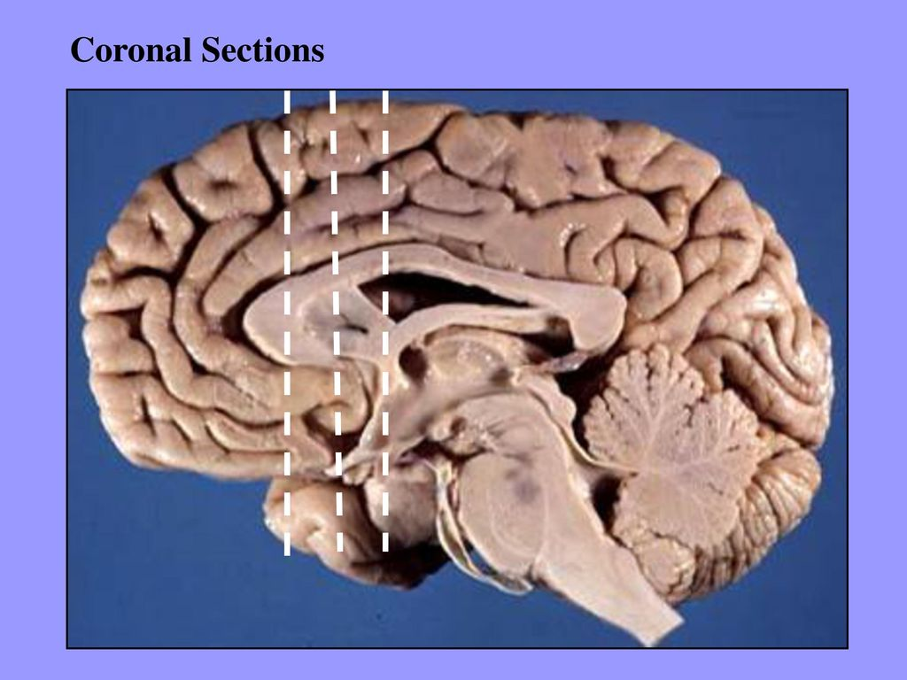 Sectional Anatomy of the Brain - ppt download