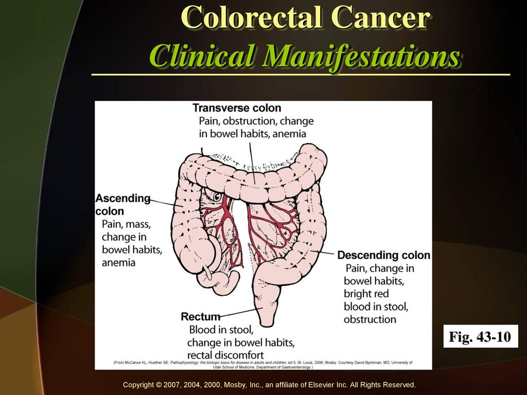 Cancer colorectal manifestations, Metastatic cancer colon survival rate