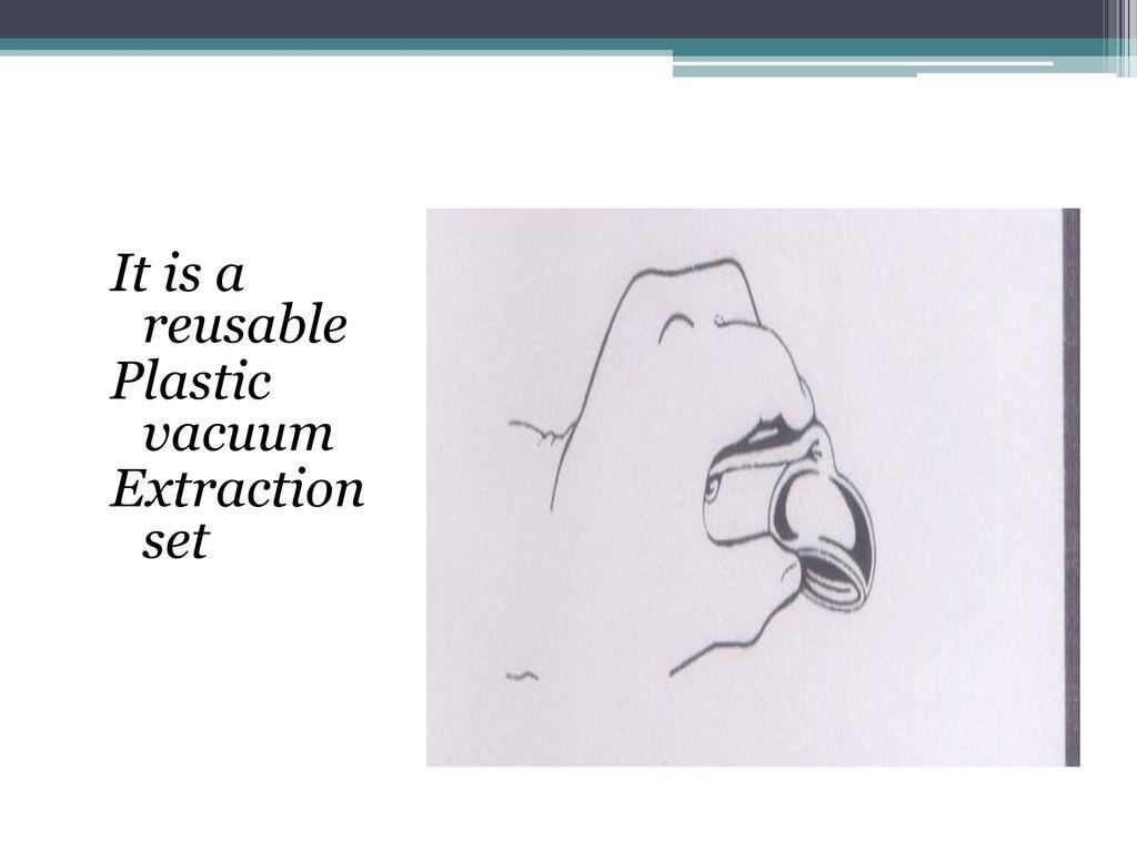 Vacuum extraction