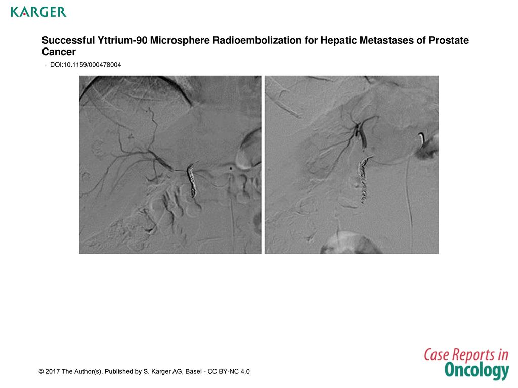 Successful Yttrium 90 Microsphere Radioembolization For Hepatic Metastases Of Prostate Cancer