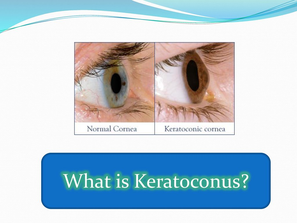 Consultant Rounds Ophthalmology Block 10A  - ppt download