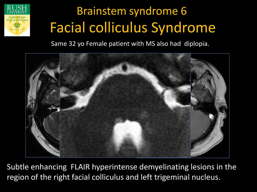 Facial colliculus syndrome picture 127