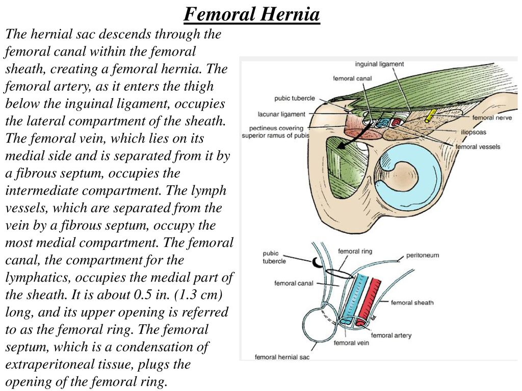 Attractive Hernia Inguinal Anatomy Ideas - Anatomy and Physiology ...