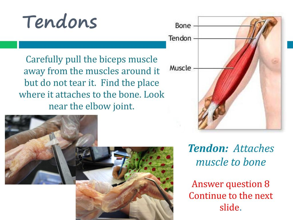 Exelent Anatomy Of Elbow Tendons Pattern - Anatomy Ideas - yunoki.info