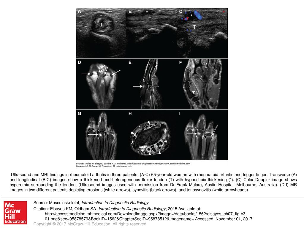 Ultrasound And Mri Findings In Rheumatoid Arthritis In Three Patients Ppt Download