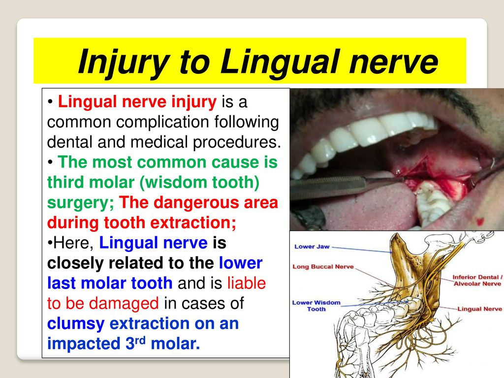 Lingual Nerve Damage Wisdom Tooth Extraction gallery - iuniana ...