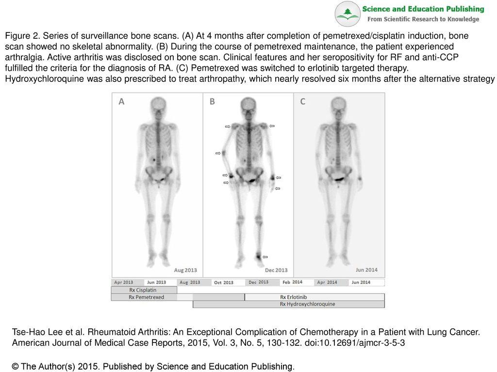 Figure 2  Series of surveillance bone scans - ppt download