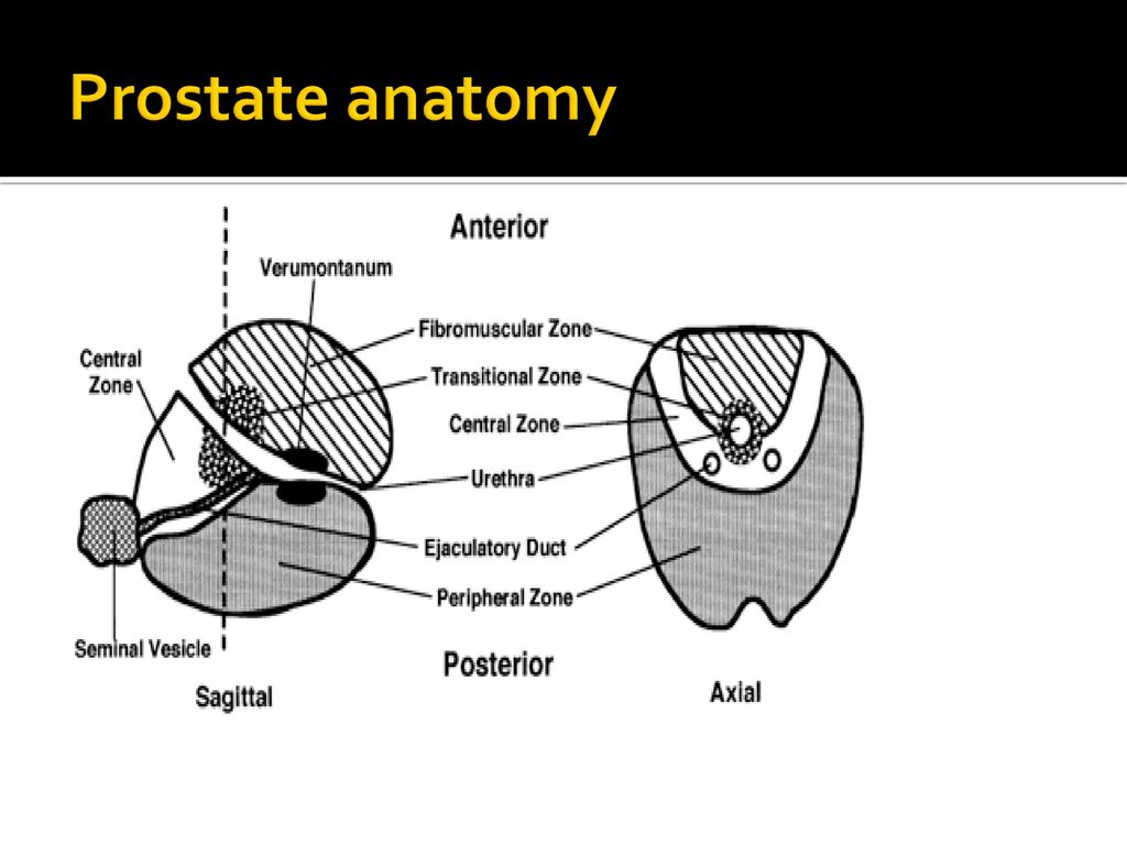 SON 2112 Ultrasound of the Abdomen Part II - ppt download