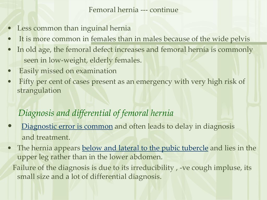 Femoral hernia Anatomy - ppt download