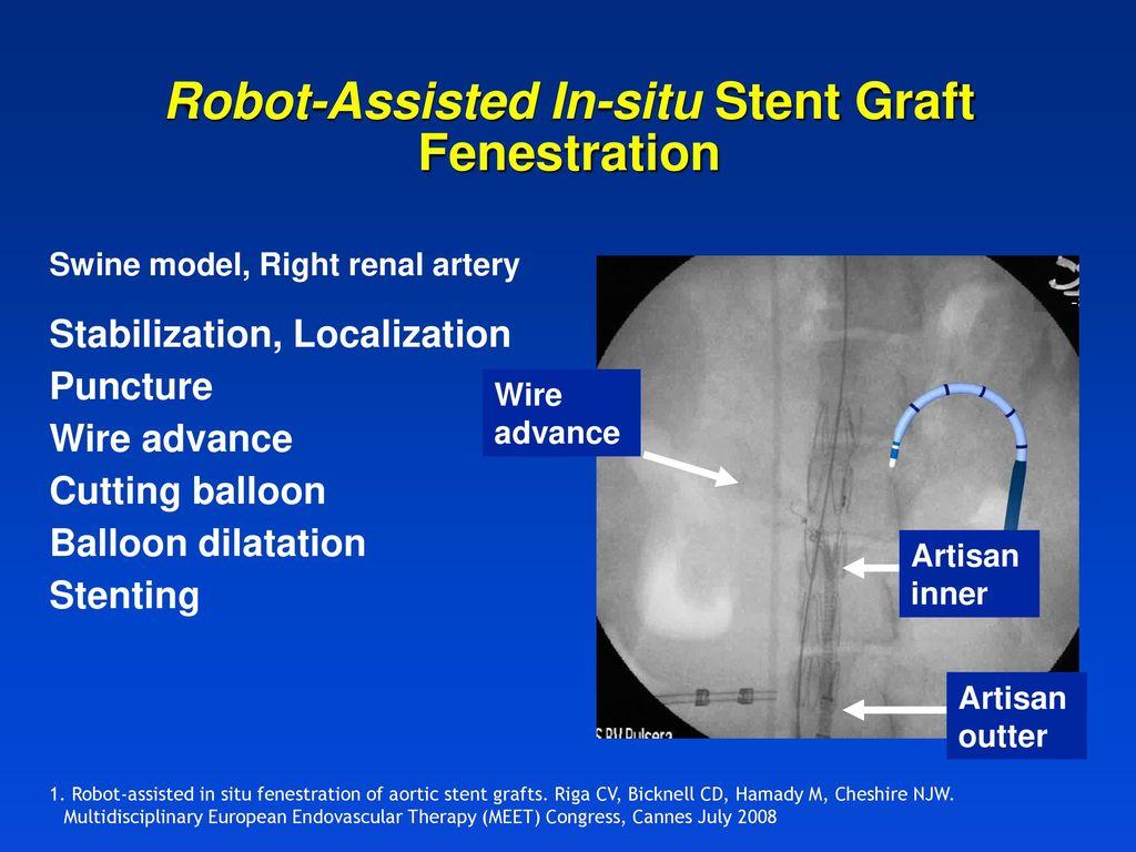 Robotic Catheter Intervention The Hansen Medical Sensei Ppt Download Artisan Wiring Diagram 24 Robot Assisted