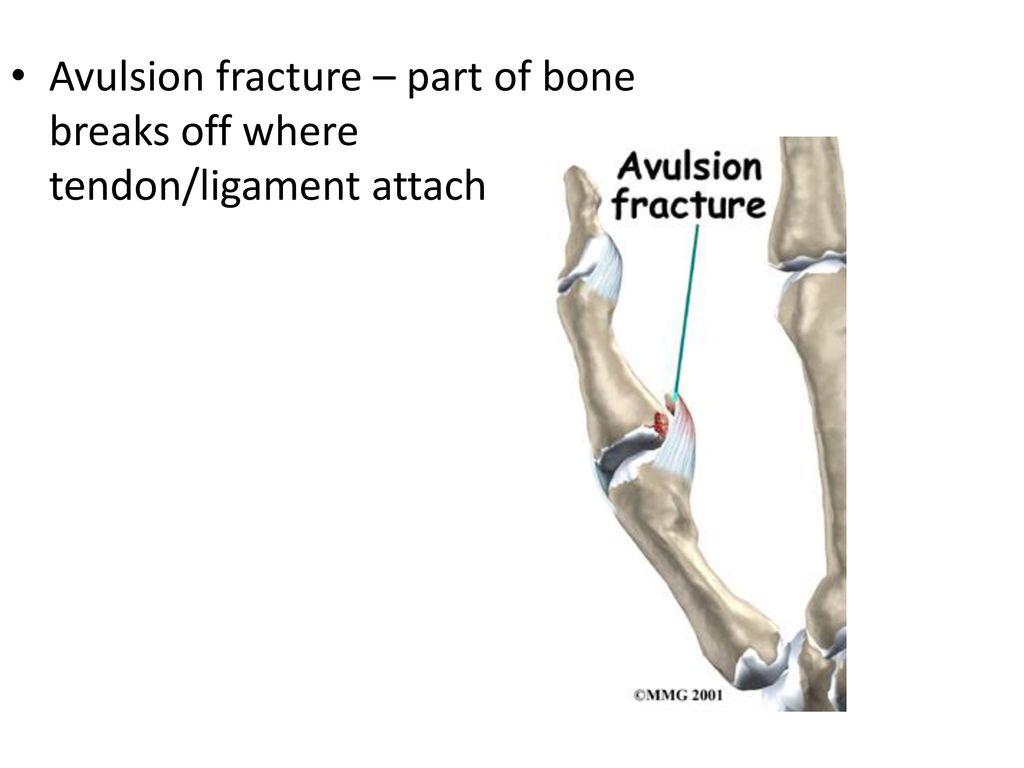 Bone Injuries Ppt Download
