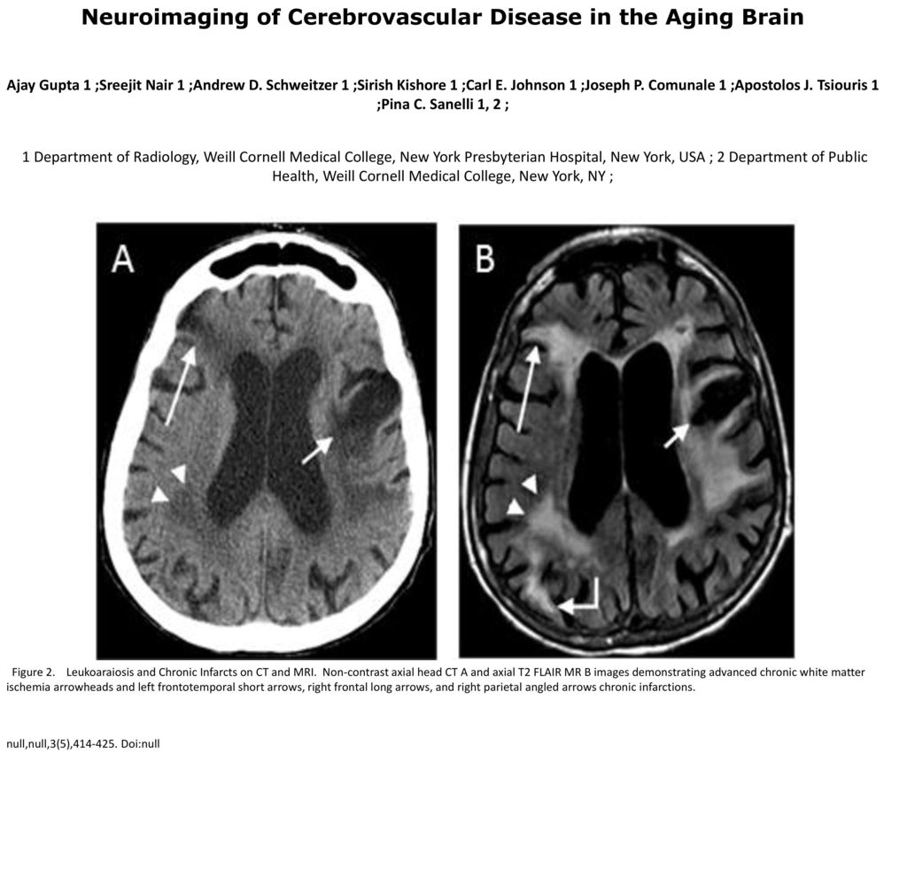 Neuroimaging of Cerebrovascular Disease in the Aging Brain - ppt