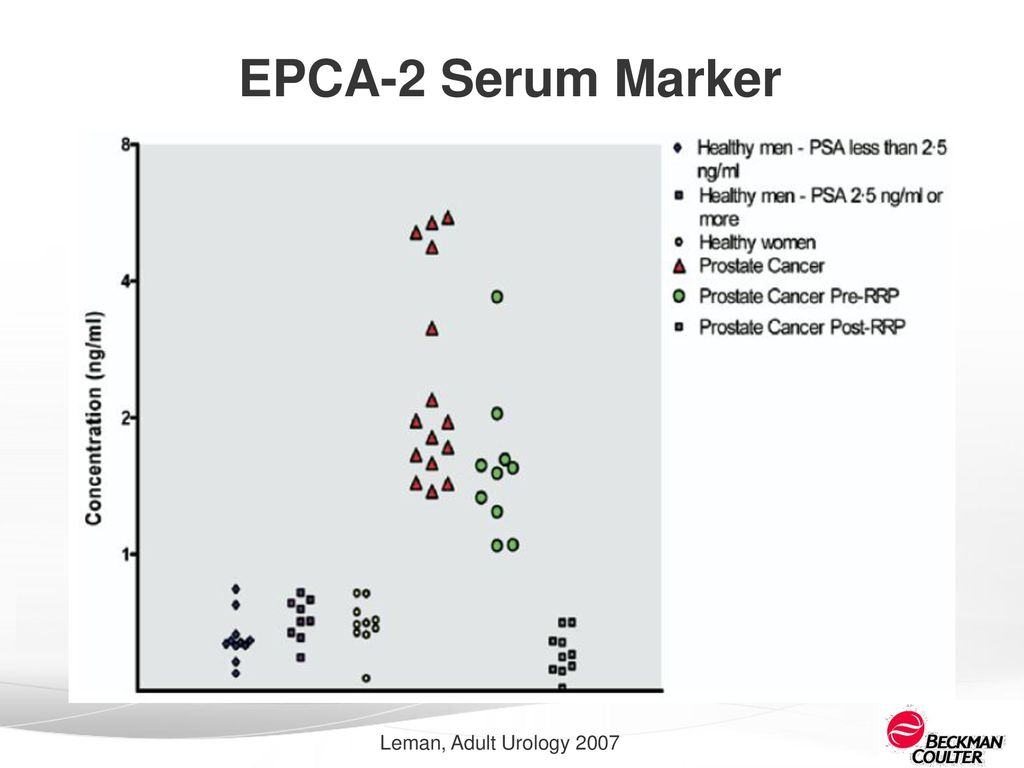 the next generation of prostate cancer detection how to make psa a33 epca 2
