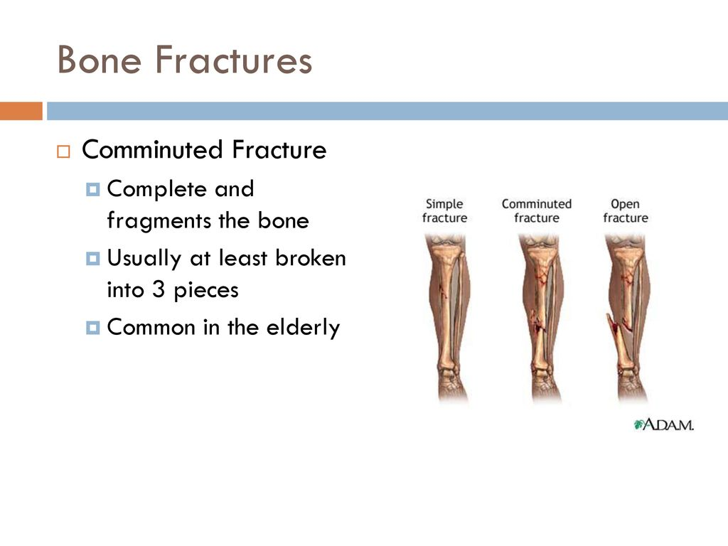 Fractures And Bone Healing Ppt Download