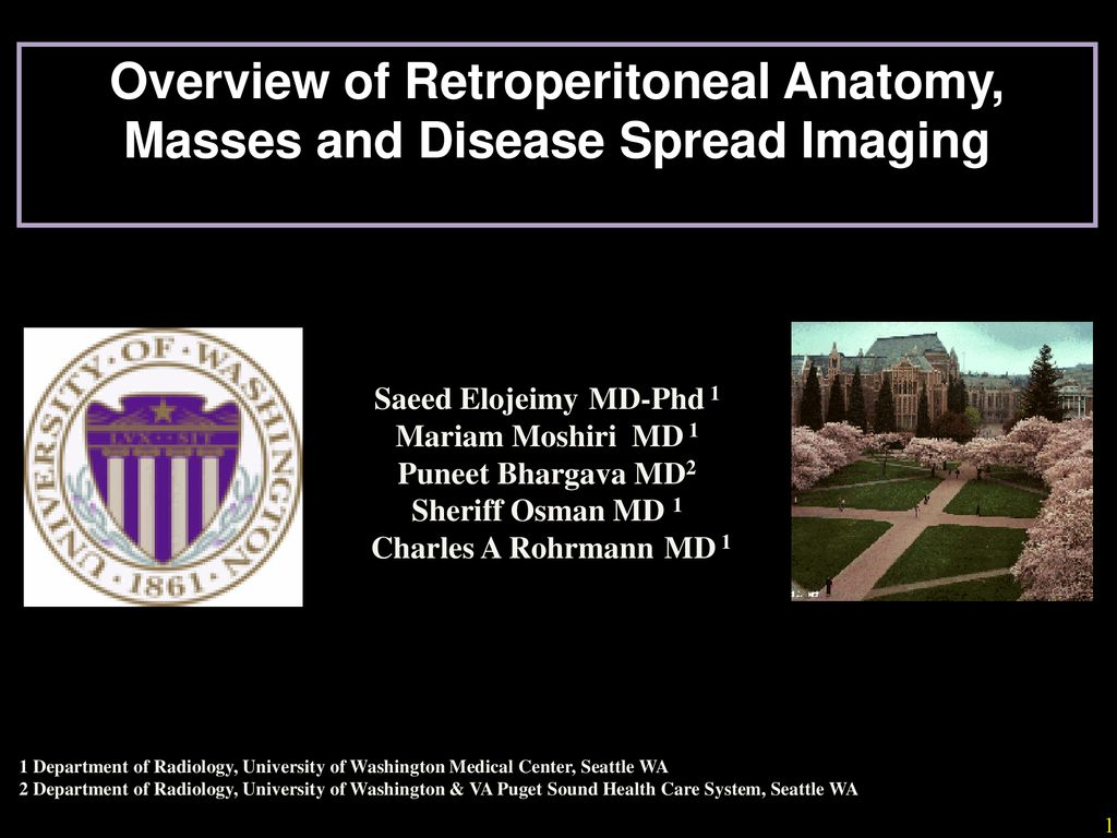 Overview Of Retroperitoneal Anatomy Masses And Disease Spread
