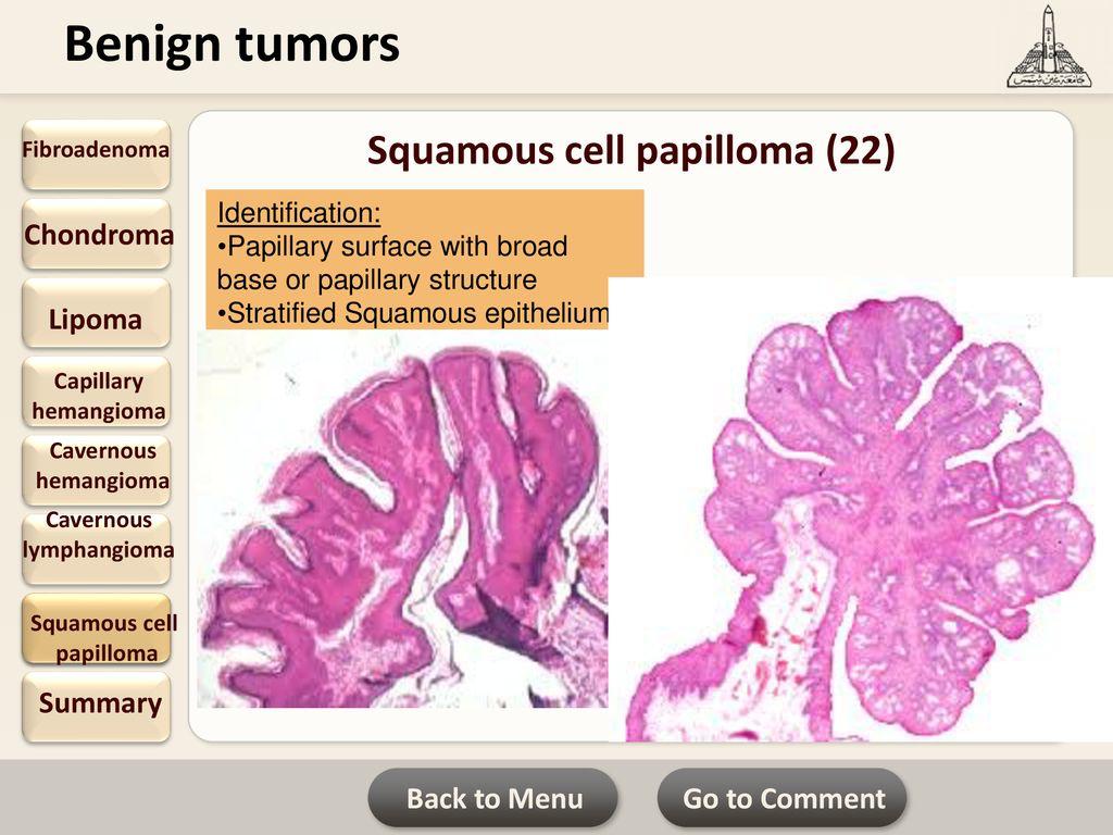 A tüdőrák típusai - Papilloma vs lipoma