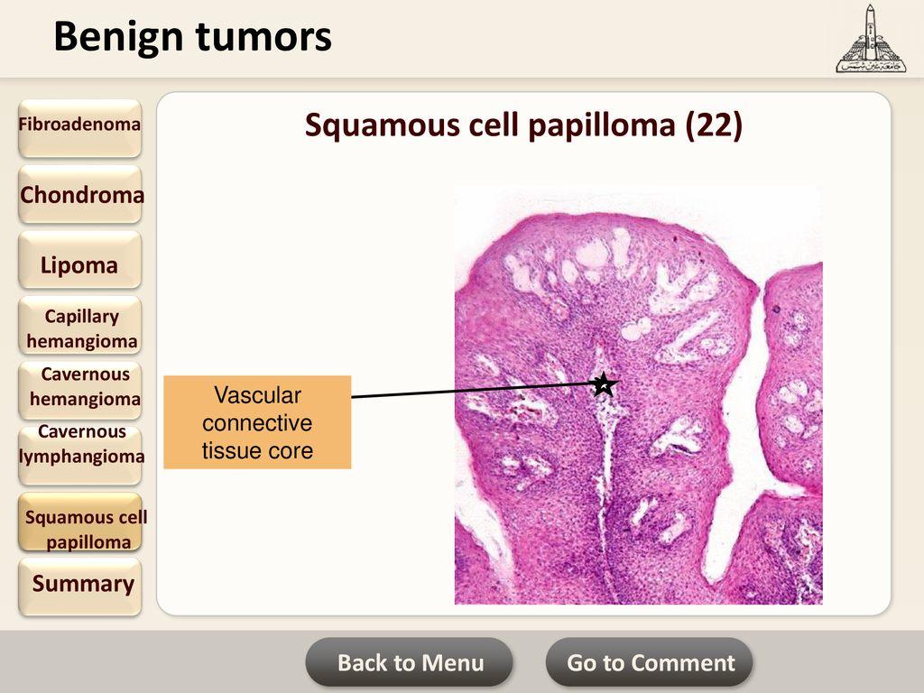 hemangioma papilloma)