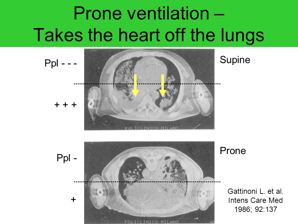 Prone ventilation – Takes the heart off the lungs