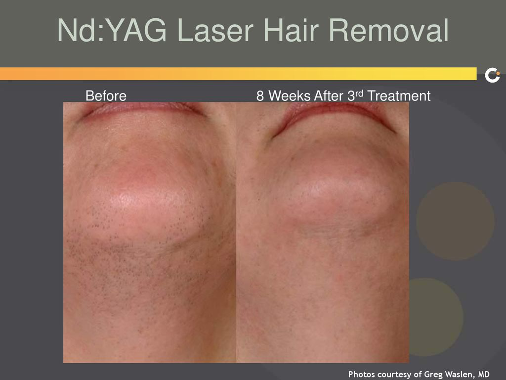 Looking For Laser Hair Removal Hollywood Bikini Reviews Latest Fashion