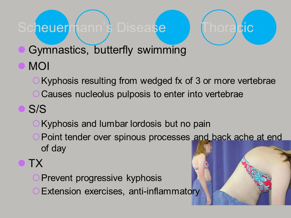 Swimming for kyphosis