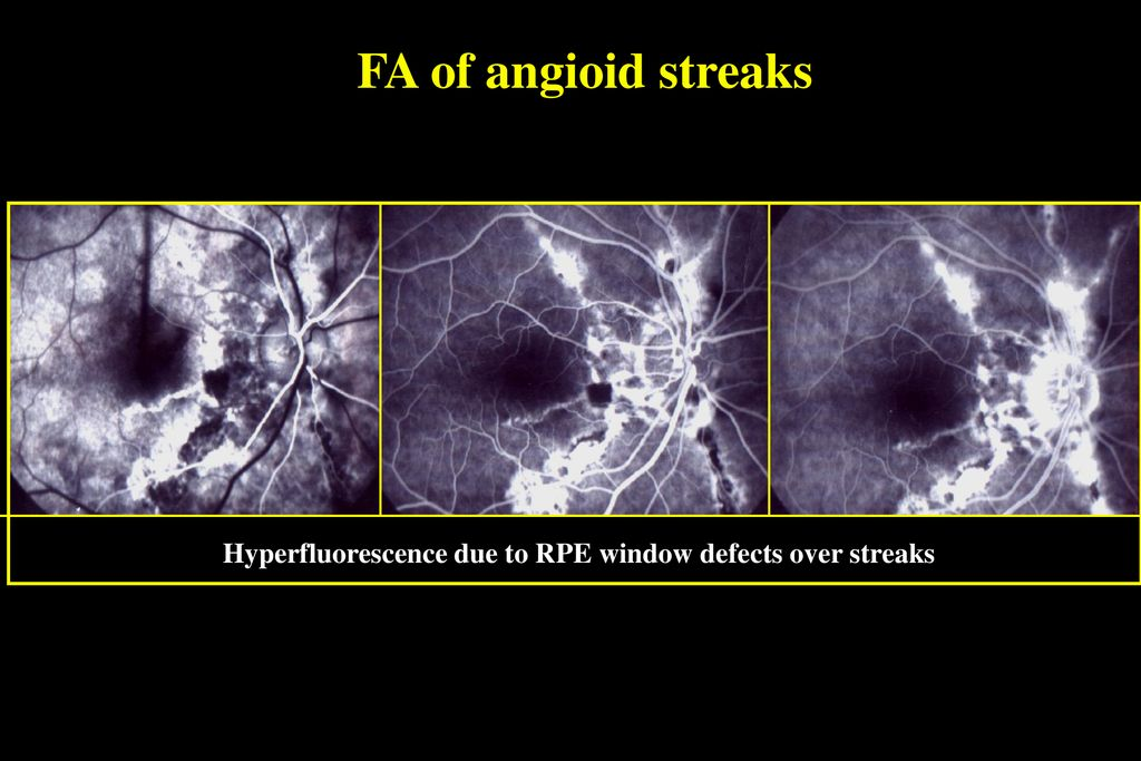 23 FA Of Angioid Streaks Hyperfluorescence Due To RPE Window Defects Over