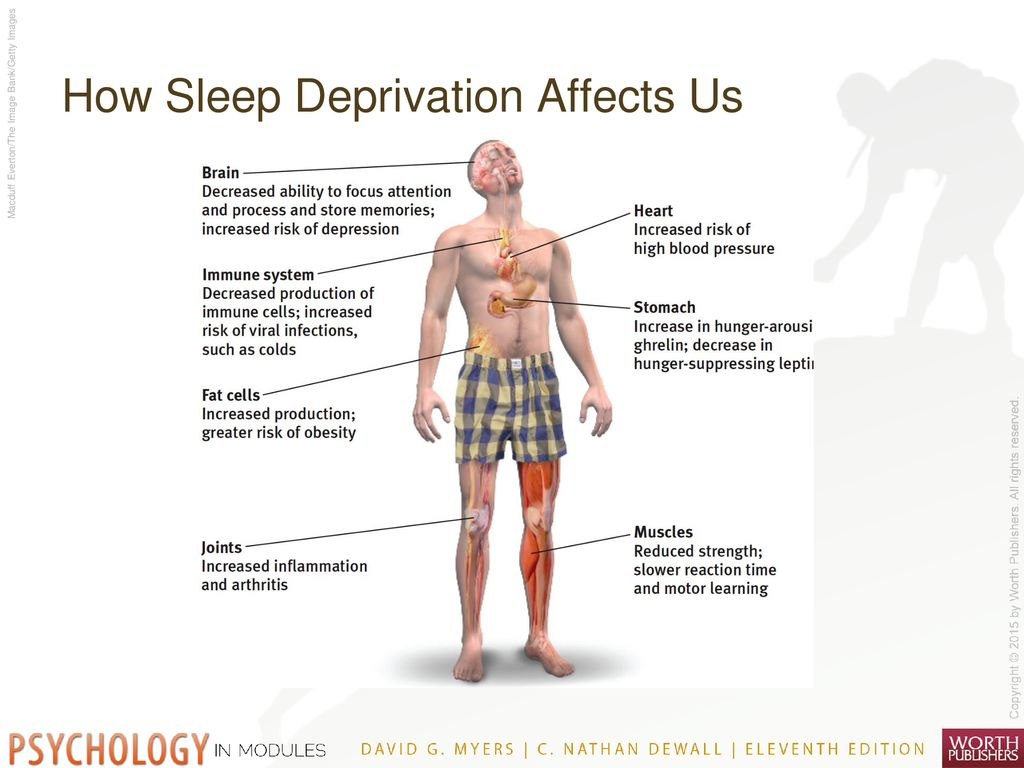 What Is Sleep? Sleep Periodic, natural loss of consciousness