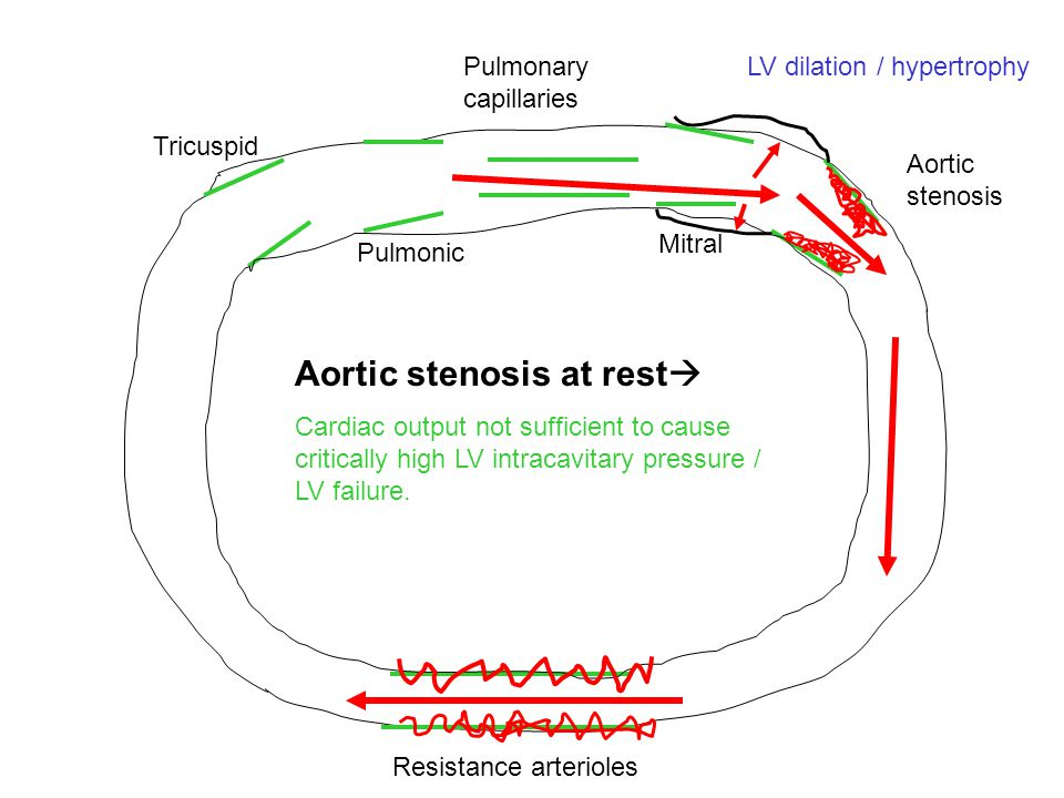 Aortic stenosis at rest