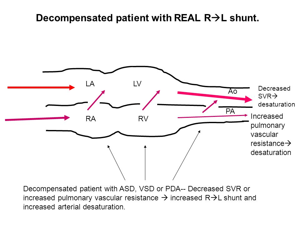 Decompensated patient with REAL RL shunt.