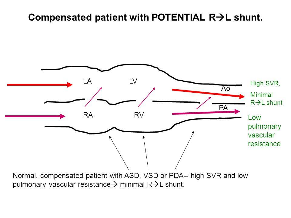 Compensated patient with POTENTIAL RL shunt.