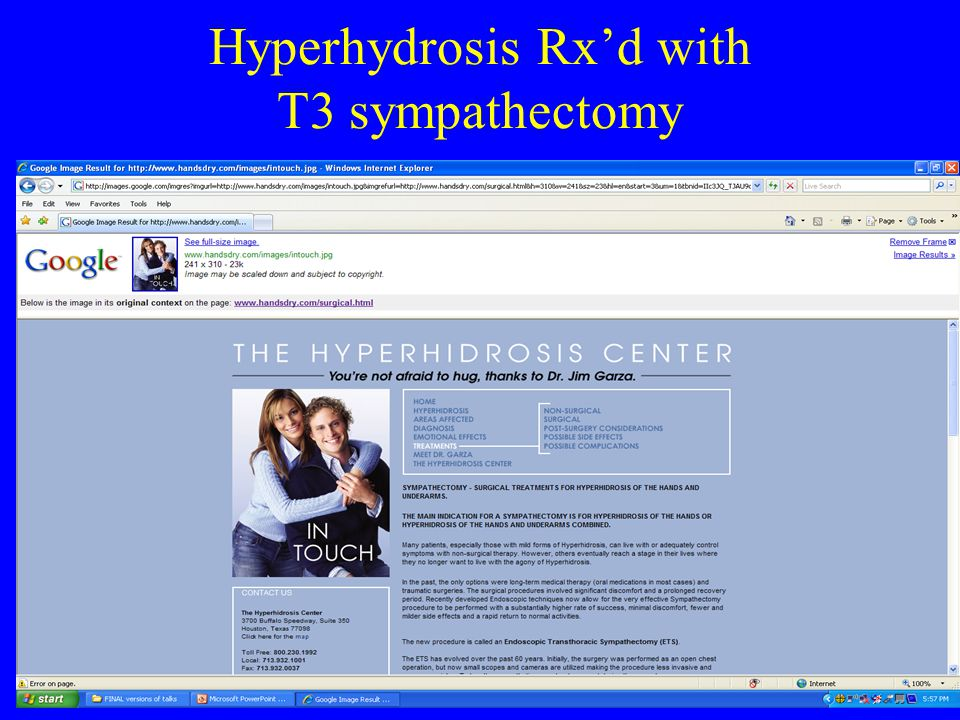 Hyperhydrosis Rx'd with T3 sympathectomy
