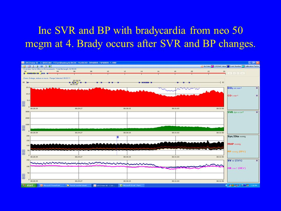 Inc SVR and BP with bradycardia from neo 50 mcgm at 4