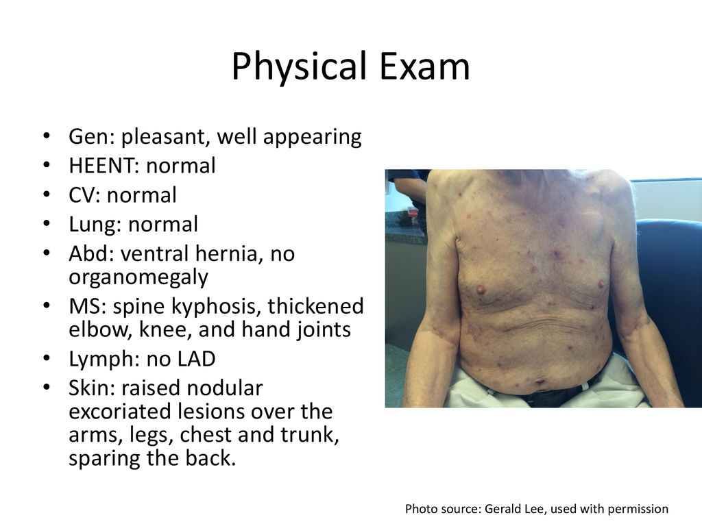 Difficult Cases: Itching without Rash - ppt download