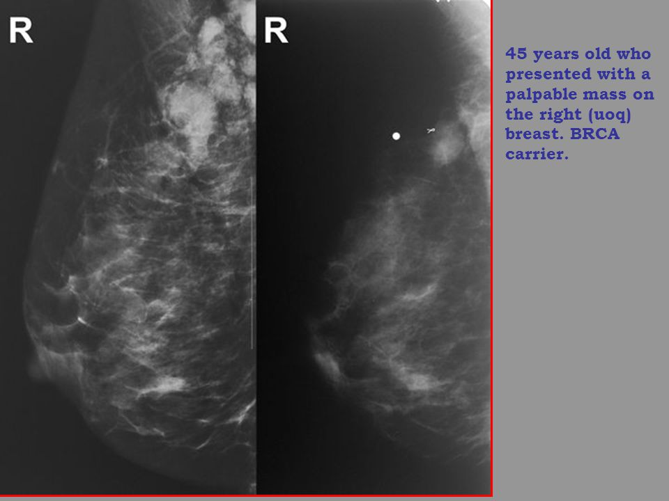 45 years old who presented with a palpable mass on the right (uoq) breast. BRCA carrier.