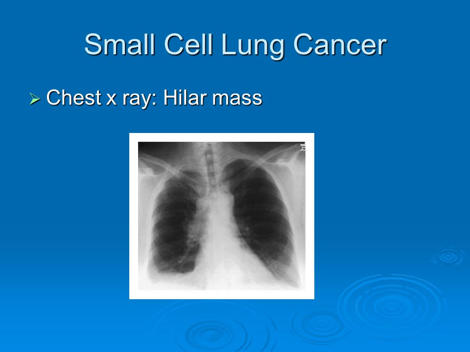 Small Cell Lung Cancer Chest x ray: Hilar mass