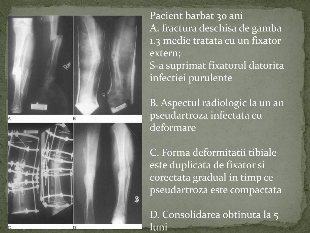 pseudartroza radiologic inflamația articulațiilor mici ale degetelor