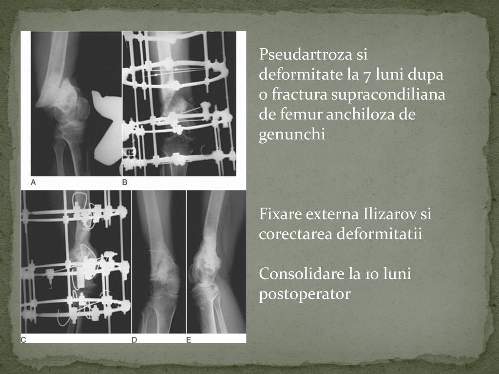 pseudartroza definitie articulațiile au devenit dureroase după îndepărtarea glandei tiroide