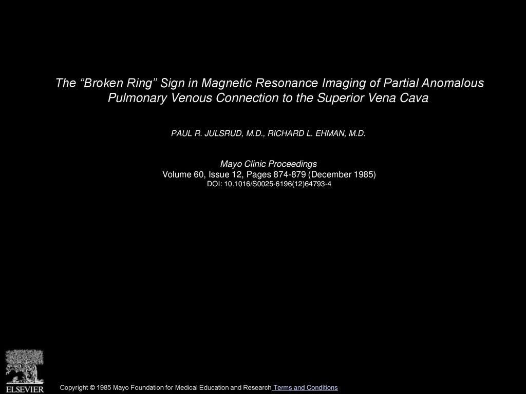 "The ""Broken Ring"" Sign in Magnetic Resonance Imaging of Partial"