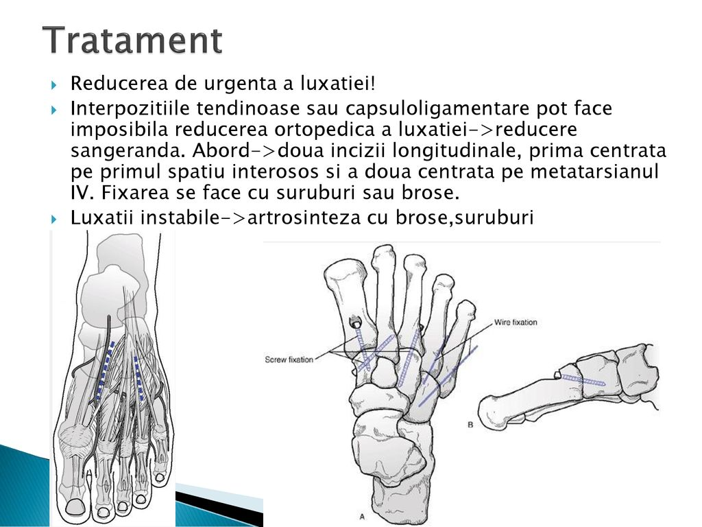 Tratamentul articulației lisfranc