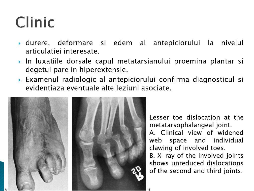 durere după reducerea articulației cu luxație problema articulației genunchiului