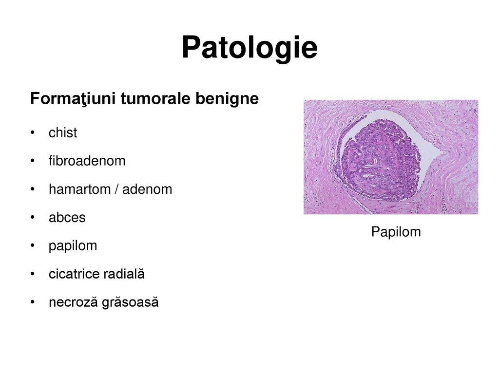 Papilomul canalelor toracice