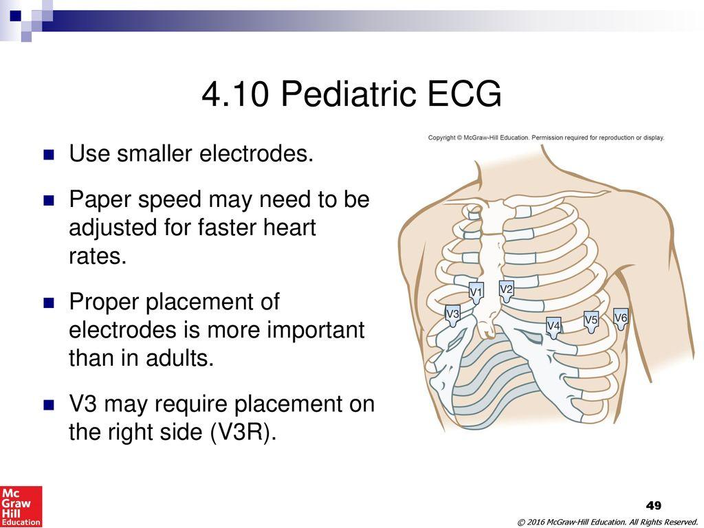 Diagram 12 Lead Ekg Trusted Wiring Diagrams 10 Pediatric Ecg Placement Radio U2022 Leads