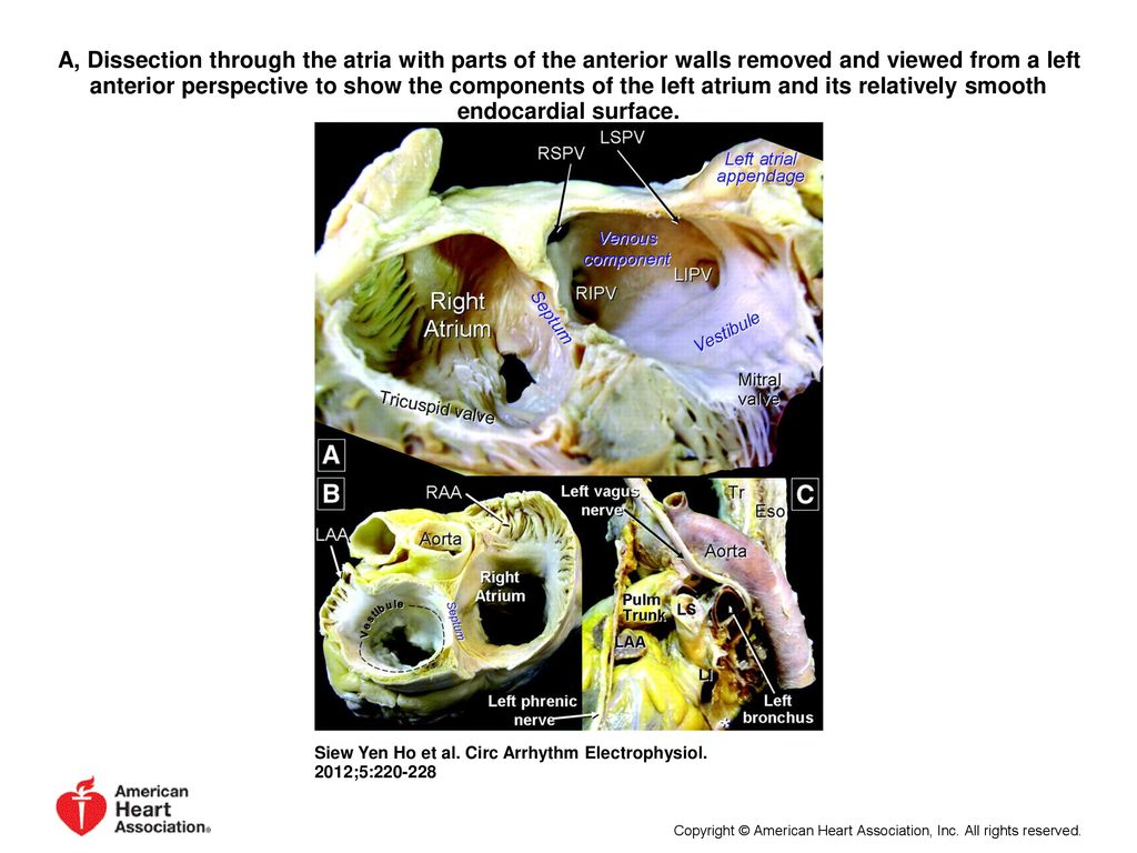 Left Atrial Anatomy Revisited Ppt Download