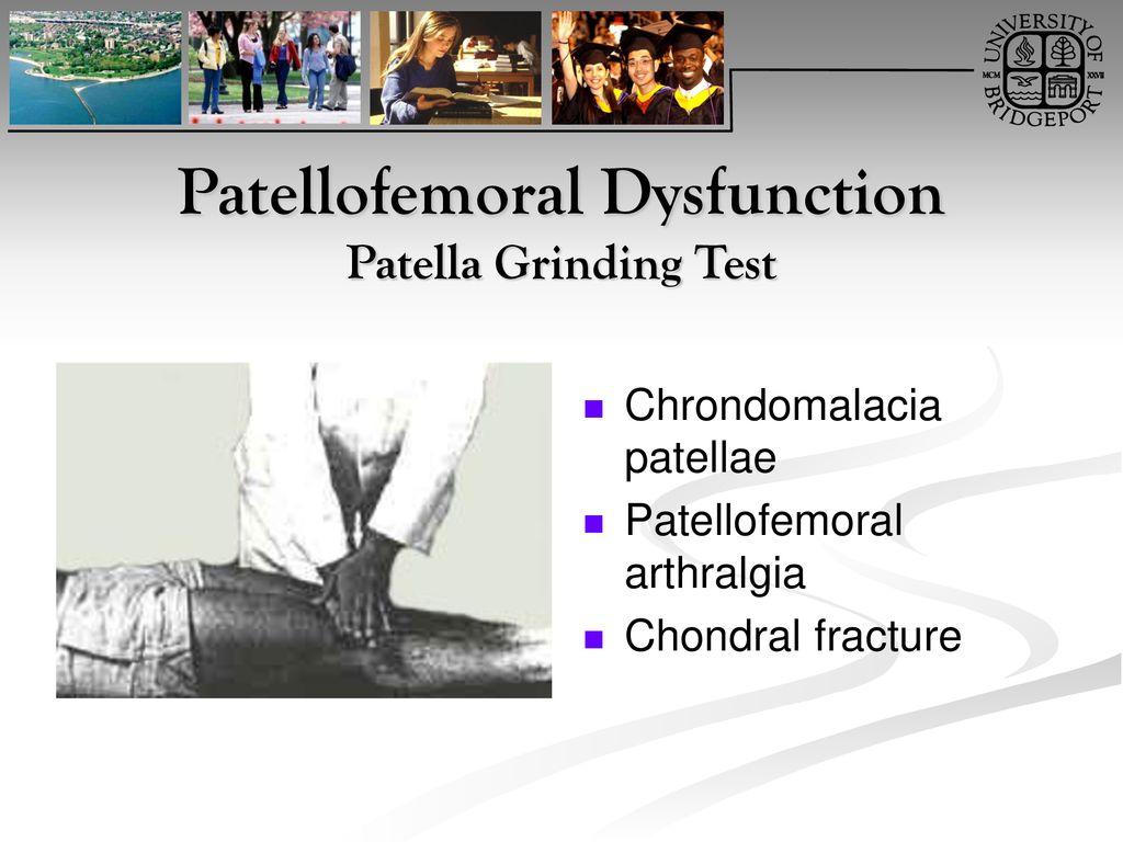 Knee Orthopaedic Tests - ppt download