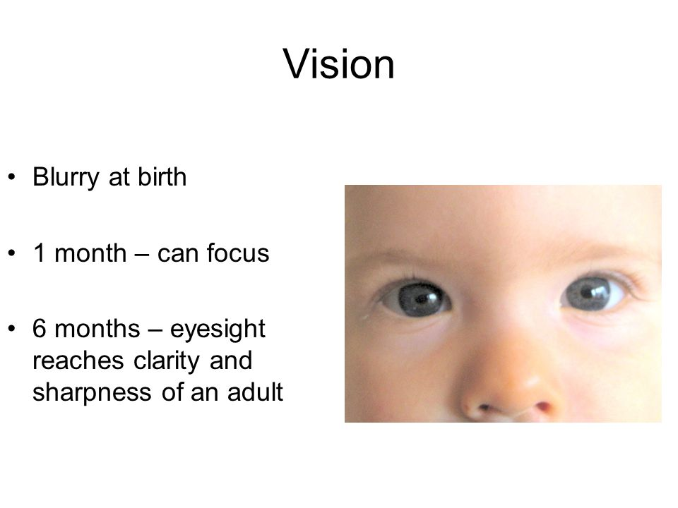 Vision Blurry at birth 1 month – can focus