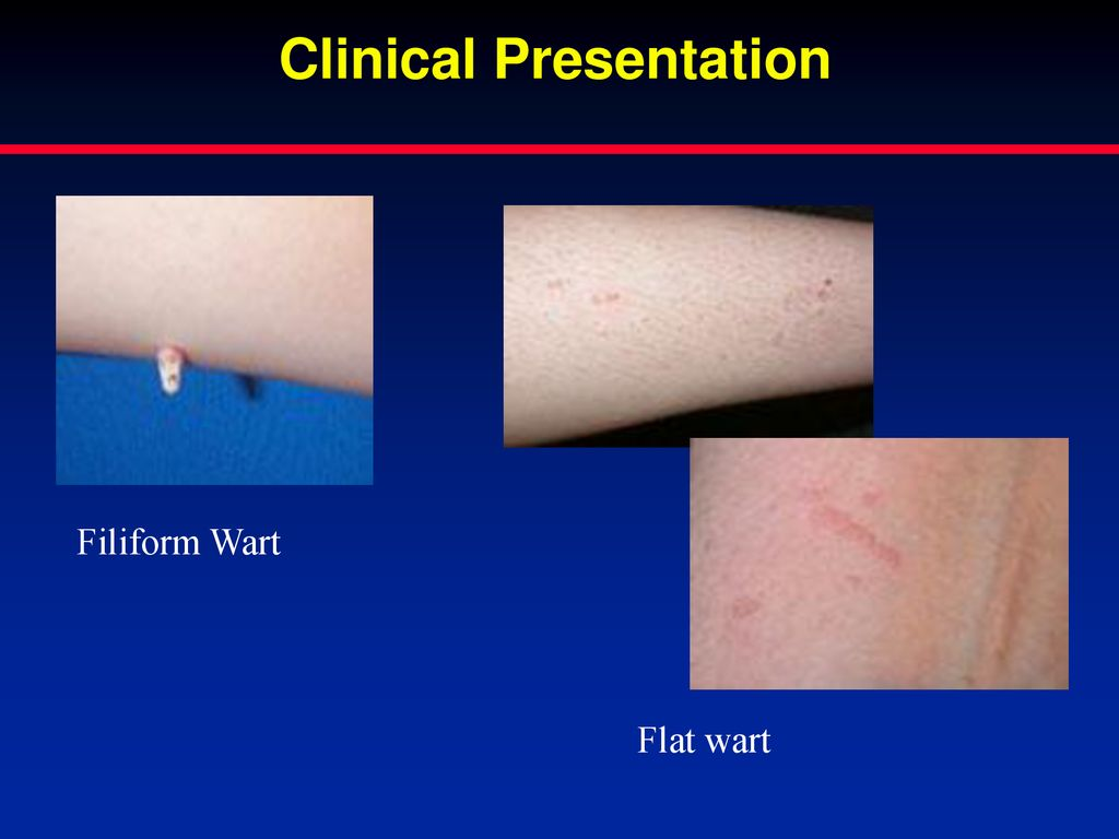 Common Dermatologic Conditions How to Treat and When To
