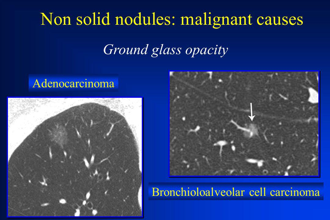 Non solid nodules: malignant causes