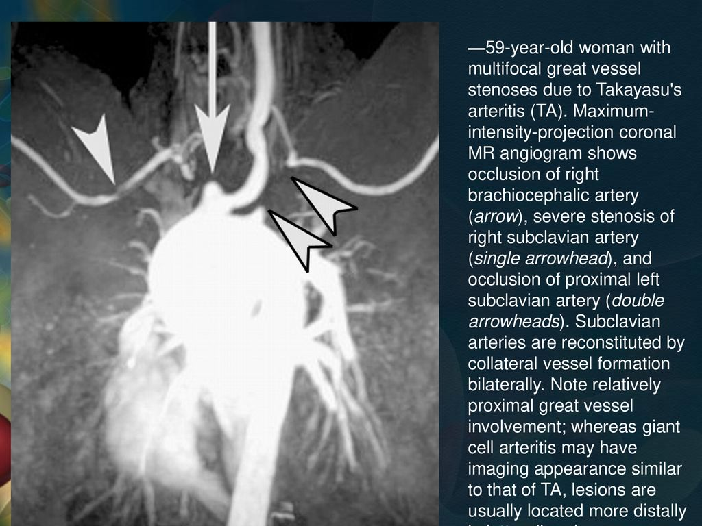 —59-year-old woman with multifocal great vessel stenoses due to Takayasu s arteritis (TA).