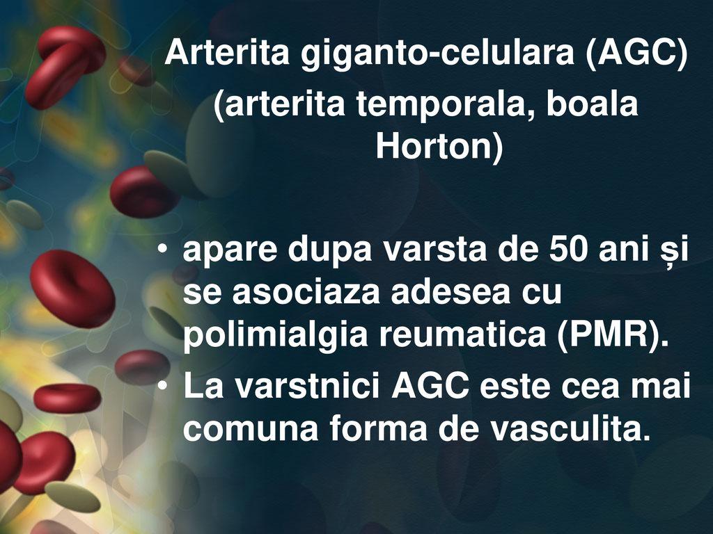 înotul tratează artroza