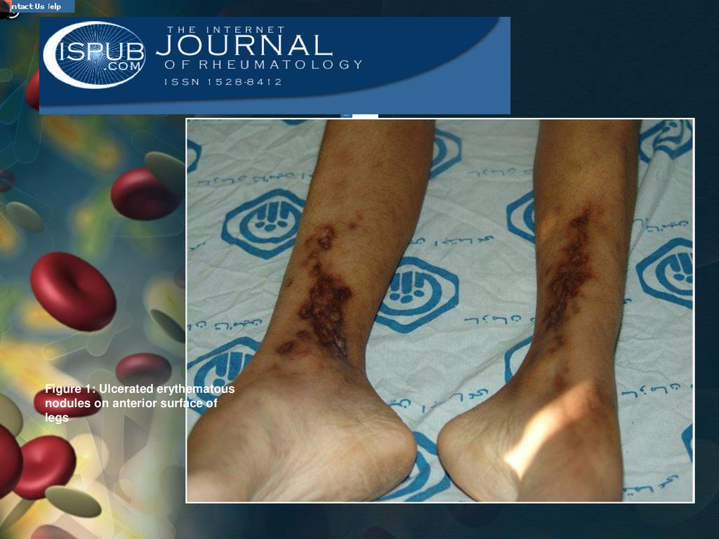 Figure 1: Ulcerated erythematous nodules on anterior surface of legs